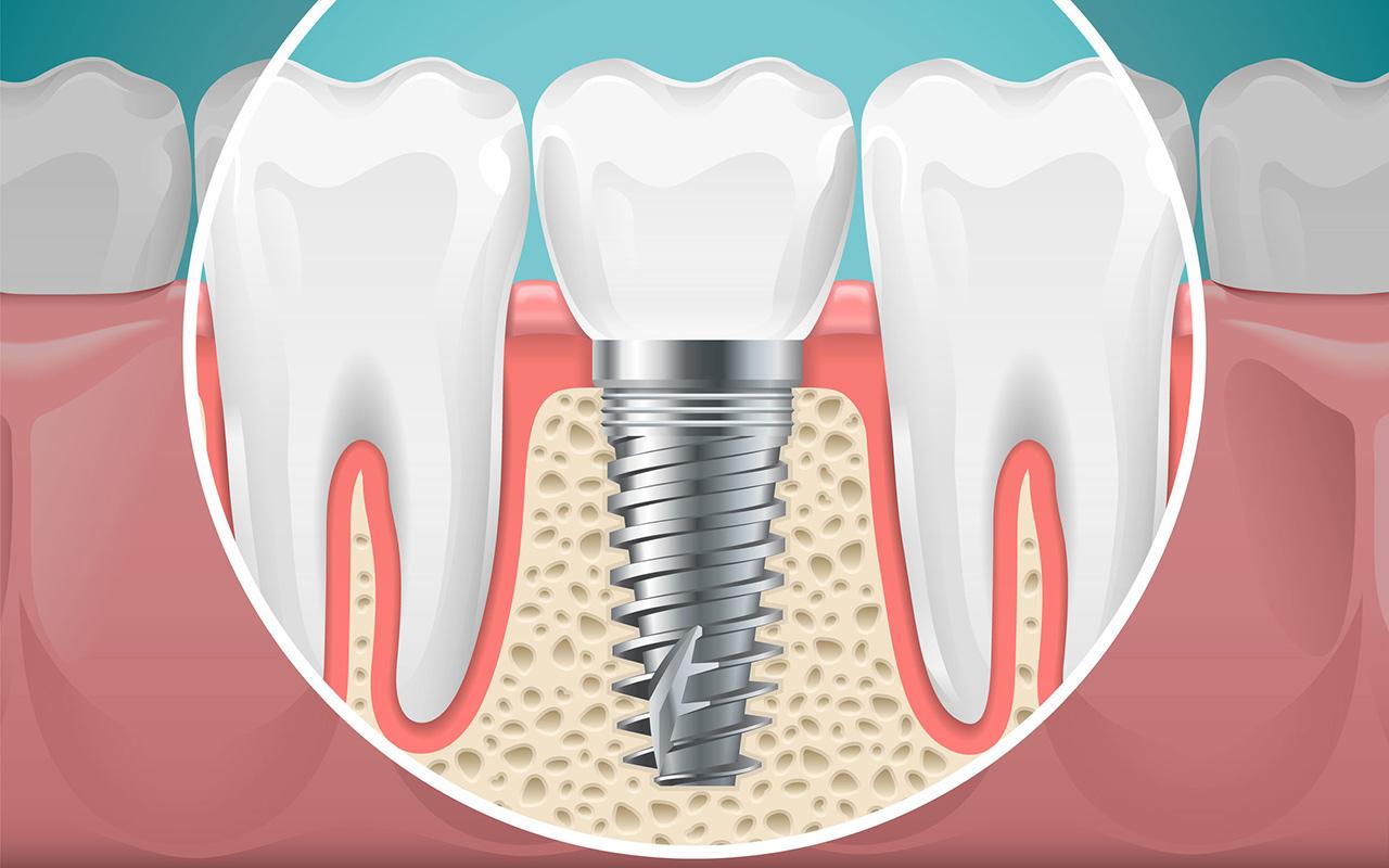 Zahnlücken