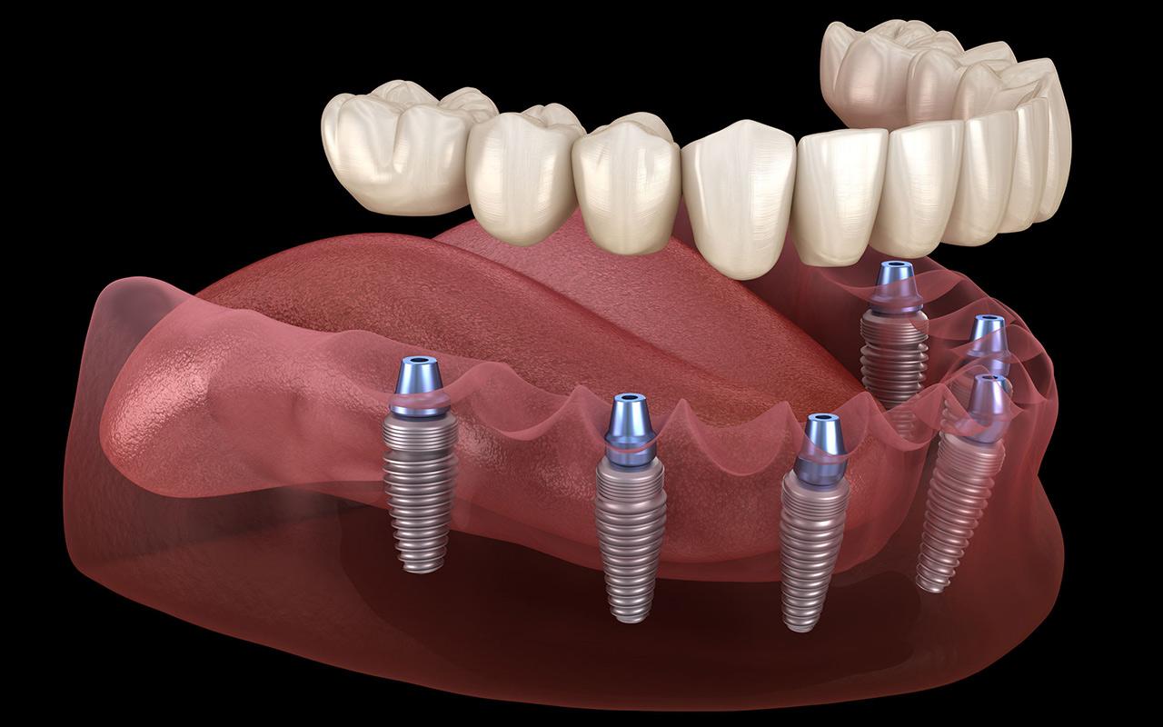 Neue Zähne - Zahnersatz